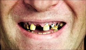 dåliga tänder