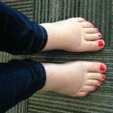 svullna fötter 1