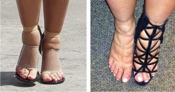 svullna fötter 2