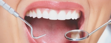 tandhygienist-2