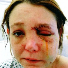 Kelly Winter, who was blinded by her boyfriend, has urged other women to seek help and escape domestic violence