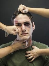 Misshandlad man